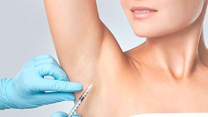 Гипергидроз подмышек - лечение