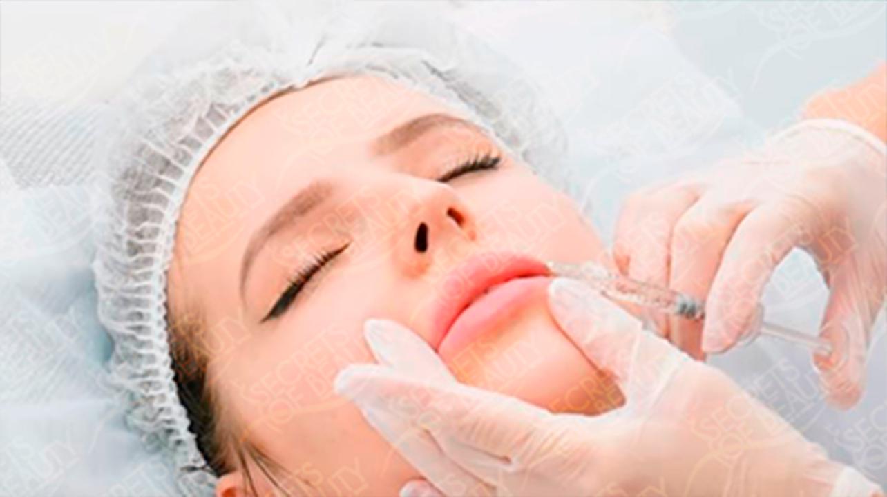 Врач о процедуре увеличения губ филлерами с гиалуроновой кислотой